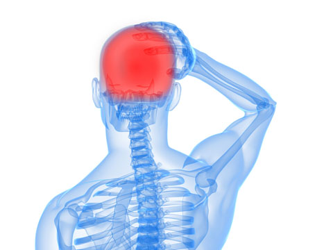 Diagram showing head pain